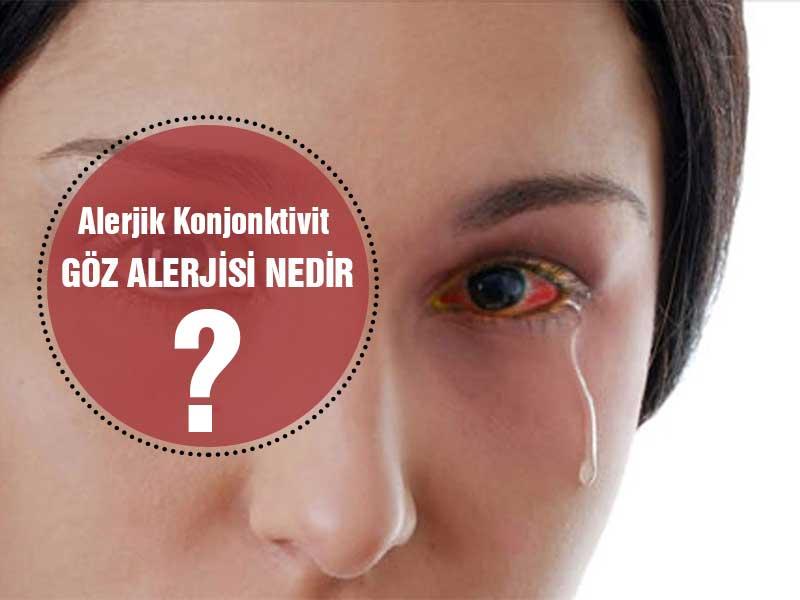Göz Alerjisi - Alerjik Konjonktivit Nedir? Tanı ve Tedavi