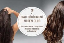 Saç Dökülmesi Neden Olur? 12 Sebep ve Çözüm!